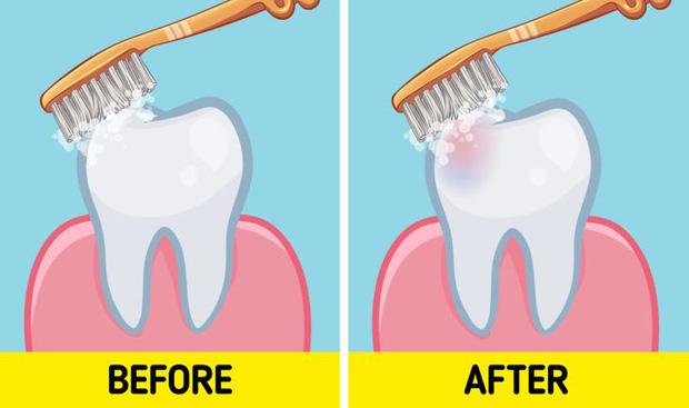 Chúng ta nên đánh răng trước hay sau khi ăn sáng? Tranh cãi nảy lửa của cộng đồng mạng cuối cùng đã được khoa học trả lời - Ảnh 3.