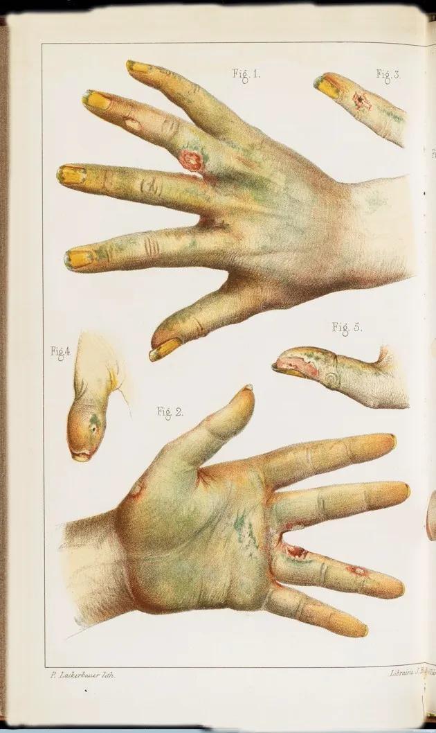 Bí ẩn về những người sử dụng chất độc làm thuốc bổ tại Châu Âu thế kỷ 19 - Ảnh 7.