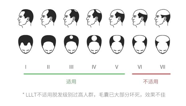 Xiaomi ra mắt mũ kích thích mọc tóc cho người bị hói, giá 4.9 triệu đồng - Ảnh 4.