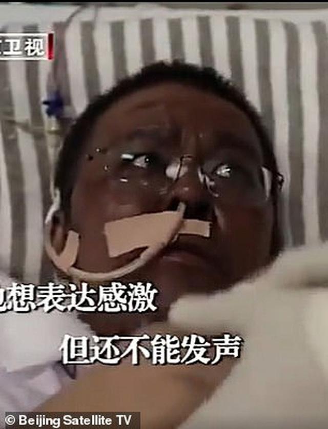 Hai bác sĩ Trung Quốc có làn da bị đổi sang màu nâu sau một thời gian dài chống chọi với Covid-19 - Ảnh 5.