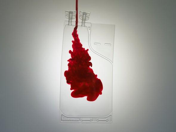 Các nhà khoa học đang muốn cô máu thành dạng bột pha như sữa, giúp bảo quản được lâu và tiện dụng hơn - Ảnh 3.