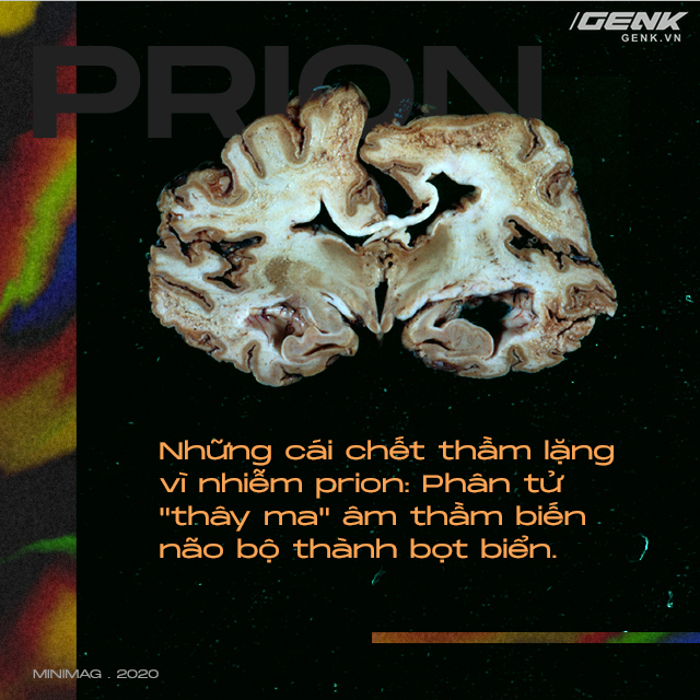 Những cái chết thầm lặng vì nhiễm prion: Phân tử thây ma âm thầm biến não bộ thành bọt biển - Ảnh 1.
