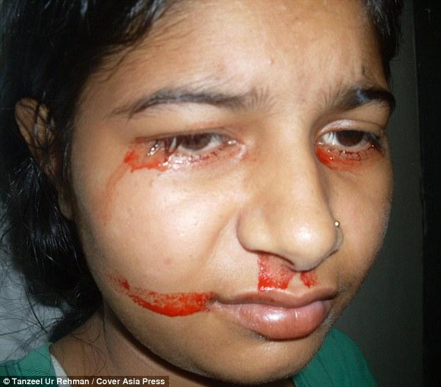 Giải mã bí ẩn của haemolacria: Chứng bệnh khiến những cô gái Ấn Độ khóc ra máu - Ảnh 4.