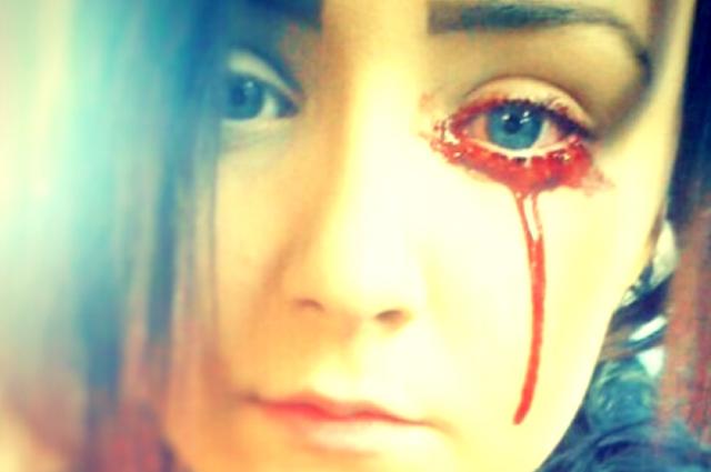 Giải mã bí ẩn của haemolacria: Chứng bệnh khiến những cô gái Ấn Độ khóc ra máu - Ảnh 5.