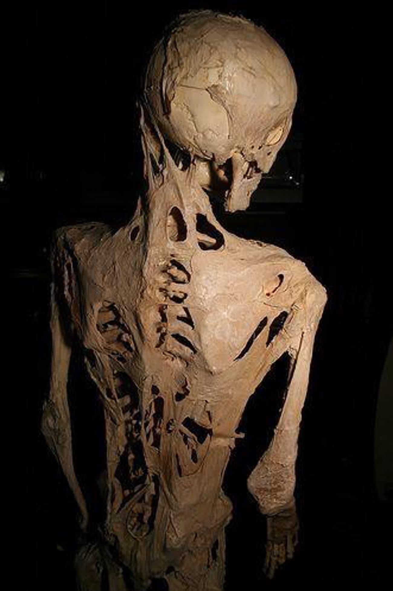 Những căn bệnh di truyền ở con người đáng sợ và kinh khủng nhất từng được khoa học biết đến - Ảnh 1.