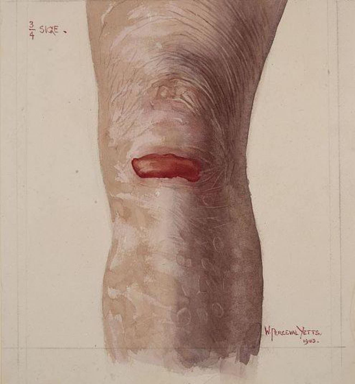 Những căn bệnh di truyền ở con người đáng sợ và kinh khủng nhất từng được khoa học biết đến - Ảnh 2.