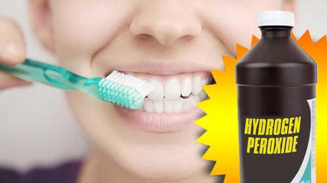 Học cách sử dụng hydrogen peroxide để làm trắng răng như trên Tik Tok: Chuyên gia khuyến cáo cần hết sức cẩn trọng! - Ảnh 1.