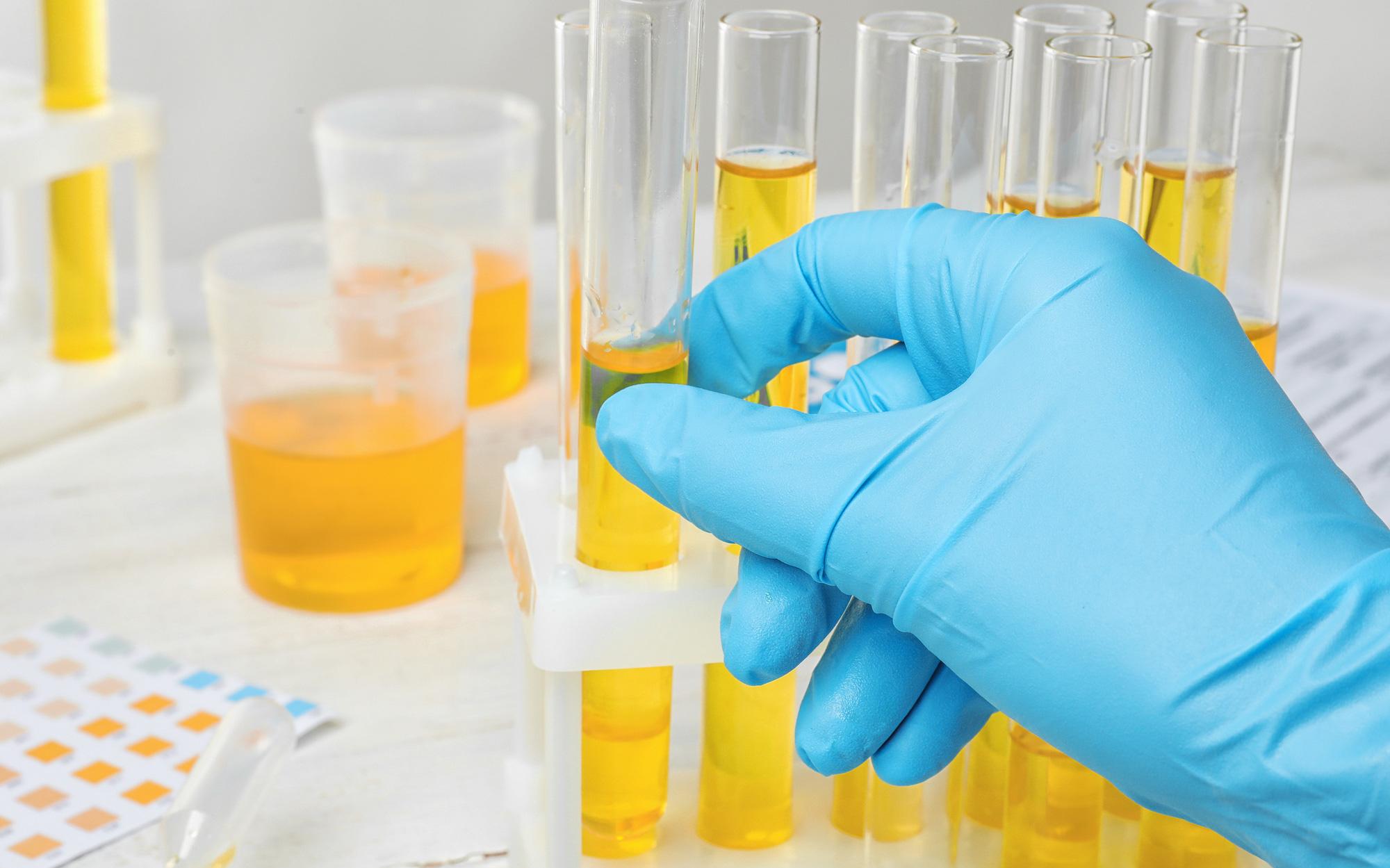 Đột phá: Chỉ xét nghiệm nước tiểu, 20 phút đã có ngay kết quả ung thư tuyến tiền liệt với độ chính xác gần 100%