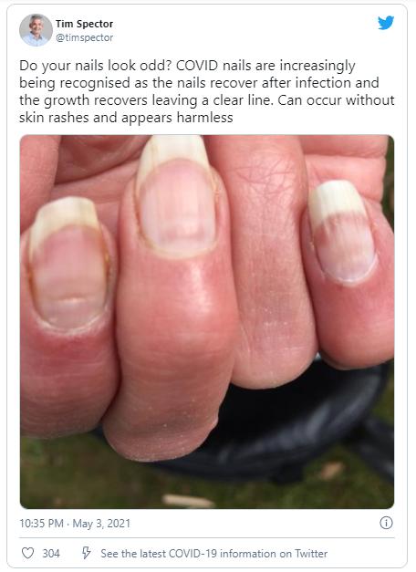 Nhiều bệnh nhân COVID-19 có vệt lõm này trên móng tay, liệu nó sẽ có ích trong việc sàng lọc bệnh? - Ảnh 1.