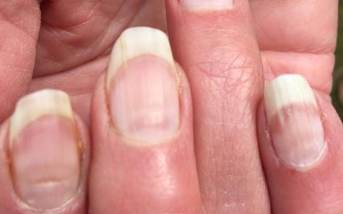 Nhiều bệnh nhân COVID-19 có vệt lõm này trên móng tay, liệu nó sẽ có ích trong việc sàng lọc bệnh?
