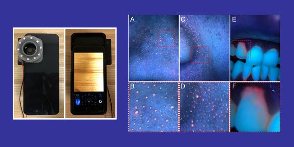 Sử dụng camera trên smartphone để xác định vi khuẩn gây mụn và bệnh răng miệng - Ảnh 2.