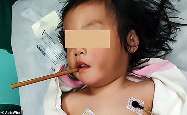 Người phụ nữ bị đũa cắm vào sọ suốt 1 tuần mà không hề hay biết - Ảnh 4.