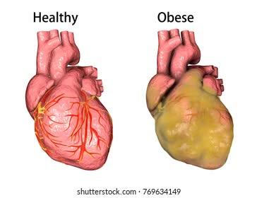 Dù cơ thể bạn thừa hay thiếu cân, màng mỡ bọc tim quá dày sẽ luôn tổn hại tới sức khỏe. Đây là cách giúp bạn cải thiện sức khỏe tim mạch - Ảnh 2.