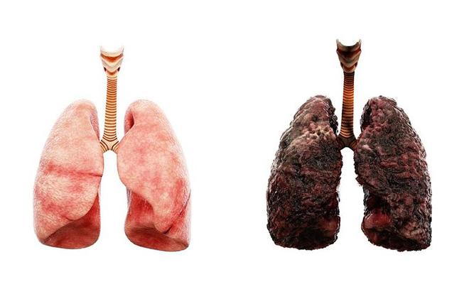 Nghiên cứu mới tìm thấy 3 dạng ung thư phổi ở những người chưa bao giờ hút thuốc, có loại phát sinh sớm tới 10 năm - Ảnh 1.