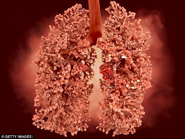 Ung thư phổi có thể được phát hiện trước 5 năm