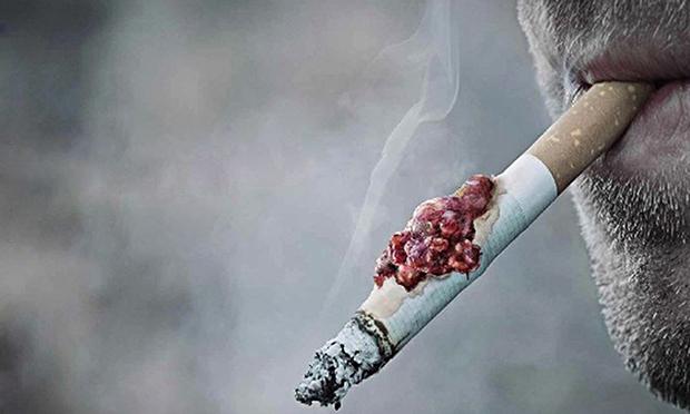 Cứ 3 người chết vì ung thư, một trong số đó bắt nguồn từ thuốc lá