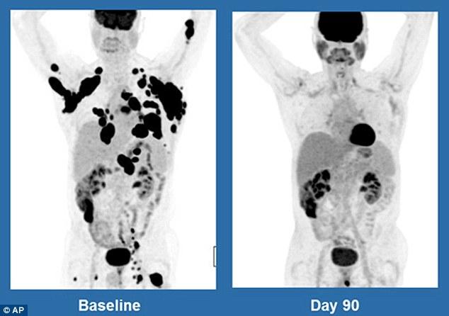 Hình ảnh quét cơ thể của một bệnh nhân 62 tuổi sau 3 tháng điều trị (màu đen thể hiện cho các khối u ung thư)