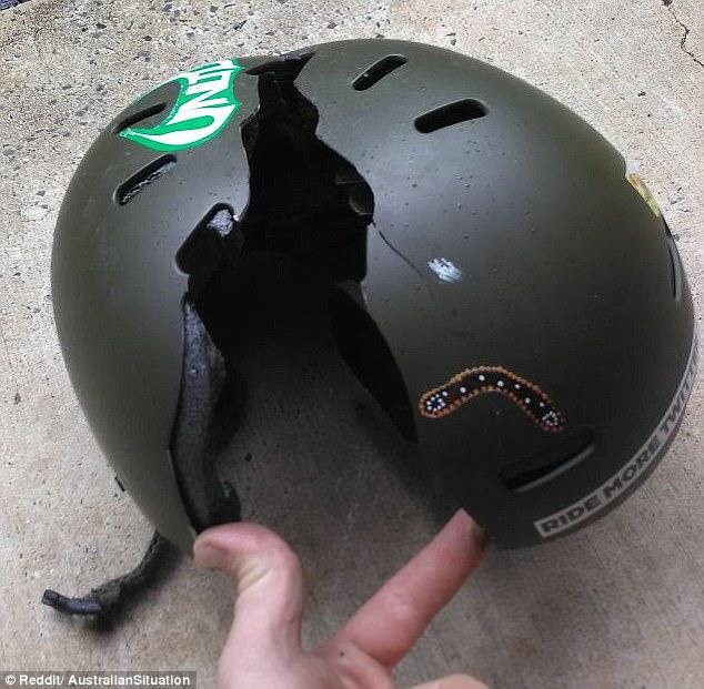 Tai nạn trong khi luyện tập thể thao cũng không kém phần khốc liệt, vỡ mũ còn hơn vỡ đầu