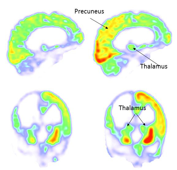 Trao đổi chất trong não bộ gia tăng sau khi thực hiện liệu pháp (bên phải so với bên trái)- ảnh chụp PET