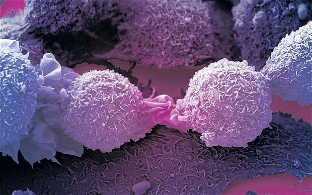 Tế bào ung thư rất láu cá, chúng giả vờ nhiễm virus để tự mạnh lên và kháng thuốc điều trị
