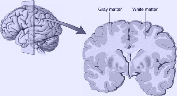 Việc chơi điện tử có dẫn tới việc tăng chất xám trong não.