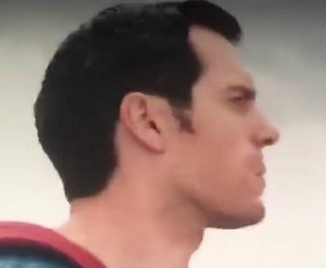 Một vài người dùng còn tá hỏa khi phát hiện ra lỗi đồ họa trên khuôn mặt của Superman