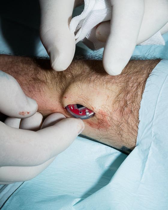 Hình ảnh các phẫu thuật viên đang lồng một thiết bị điện tử xuống dưới lớp da trong album của Hannes Wiedemann.