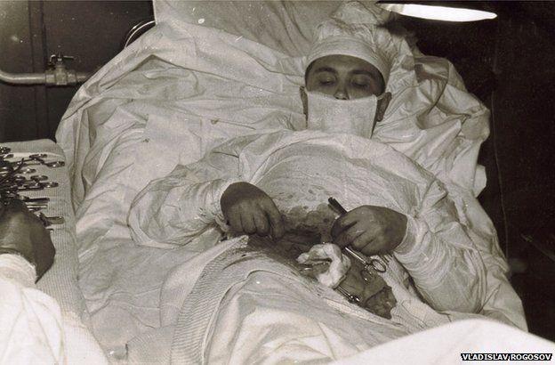 Bức ảnh huyền thoại về người đàn ông dũng cảm tự cắt ruột thừa cho mình.