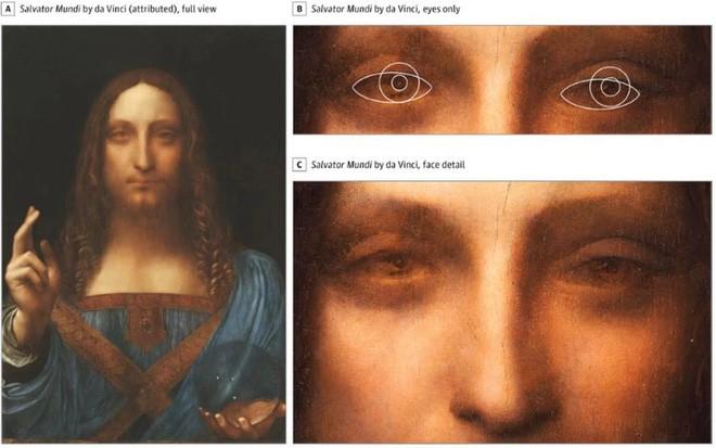 Leonardo da Vinci trở thành danh họa vĩ đại vì mang tật lác mắt hiếm gặp? - Ảnh 1.
