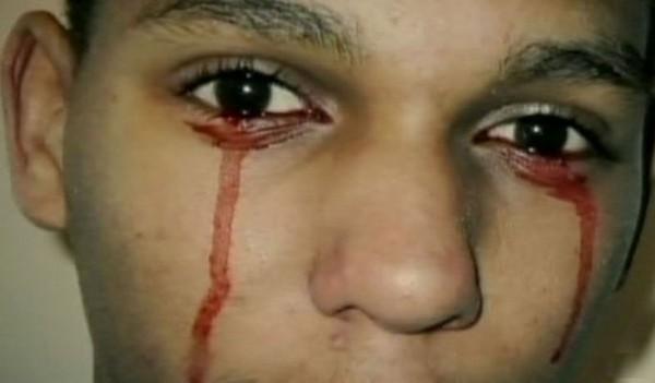 Mắc chứng bệnh kỳ lạ, người đàn ông Italia khóc ra máu khiến các bác sĩ cũng phải lúng túng - Ảnh 3.