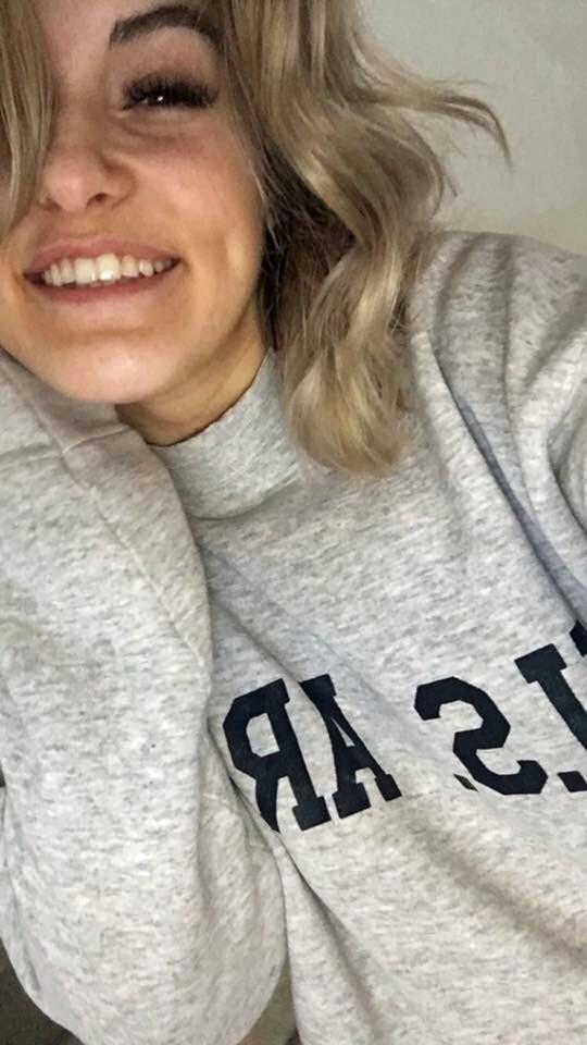 Cô gái 21 tuổi và chứng dị ứng mùa đông kỳ lạ: Hễ nhiễm lạnh là nổi mề đay, có thể tử vong vì ngạt thở - Ảnh 1.