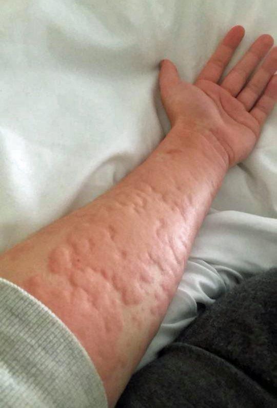 Cô gái 21 tuổi và chứng dị ứng mùa đông kỳ lạ: Hễ nhiễm lạnh là nổi mề đay, có thể tử vong vì ngạt thở - Ảnh 2.