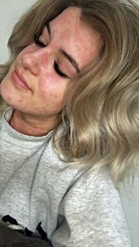 Cô gái 21 tuổi và chứng dị ứng mùa đông kỳ lạ: Hễ nhiễm lạnh là nổi mề đay, có thể tử vong vì ngạt thở - Ảnh 3.