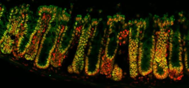 Vi sinh vật trong ruột có thể ảnh hưởng cả đến bộ gen, chúng hứa hẹn được sử dụng trong cả điều trị ung thư