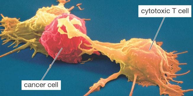 Chỉ cần nhận diện được ung thư, các tế bào T của hệ miễn dịch có thể tiêu diệt chúng