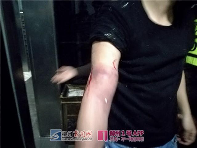 Chàng trai Trung Quốc suýt mất tay vì cố nhặt iPhone 8 rơi xuống xí xổm - Ảnh 2.