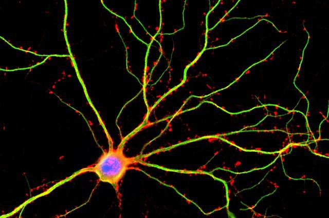 Bạn có biết vỏ não của mình chứa tới 17 tỷ cái máy tính không? - Ảnh 7.