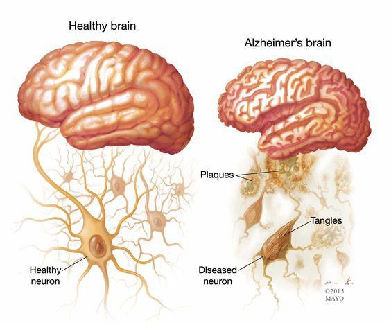 Bên trái là bộ não khỏe mạnh, bên phải là bộ não bị Alzheimer, với các plaque là các mảng bám protein.