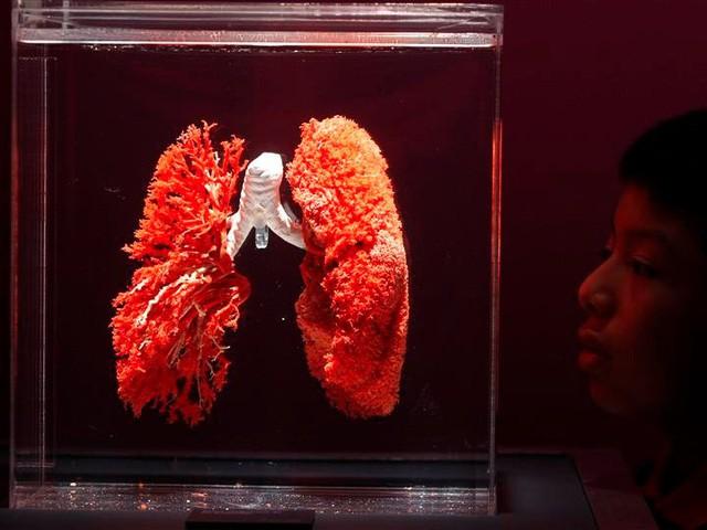 Công nghệ in 3D đang dần cách mạng hóa nền y tế như thế nào? - Ảnh 3.