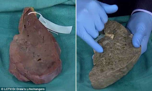 Lá gan bình thường (bên trái) và lá gan bị xơ (bên phải)