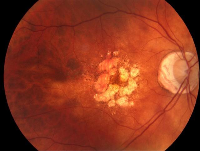 Cuối cùng các nhà khoa học cũng tìm ra cơ chế hủy hoại mắt của ánh sáng xanh dương phát ra từ điện thoại - Ảnh 2.