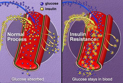 Manh mối về chế độ ăn giảm cân keto làm tăng nguy cơ mắc tiểu đường? - Ảnh 3.