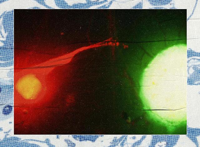 Điệu nhảy cộng sinh của ung thư và hệ thần kinh: Y học đang bước chân vào một miền đất hứa mới - Ảnh 5.