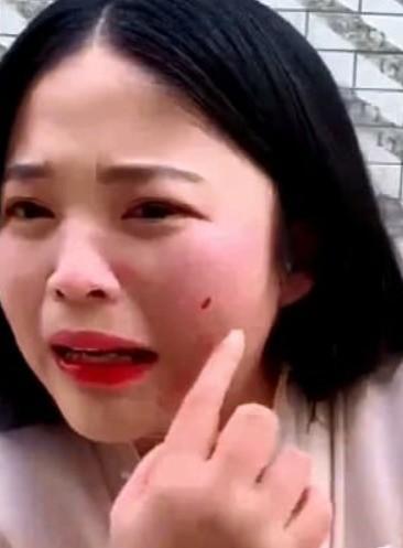 Livestream ăn bạch tuộc tươi sống, vlogger Trung Quốc bị sinh vật này tấn công rách cả da mặt - Ảnh 3.