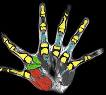 Các nhà khoa học phát hiện rằng việc có sáu ngón tay có thể đem lại nhiều lợi ích trong cuộc sống - Ảnh 2.