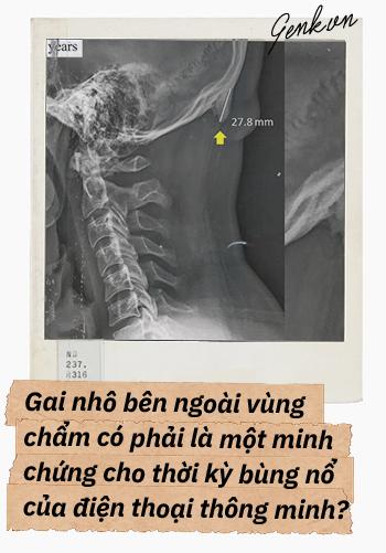 Đọc cuối tuần: Từ một con dê khuyết tật cho đến những bí ẩn trong bộ xương người - Ảnh 9.