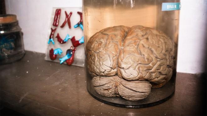 Nuôi hàng trăm bộ não thu nhỏ trong ống nghiệm, các nhà khoa học phát hiện chúng có sóng não như trẻ sơ sinh - Ảnh 4.