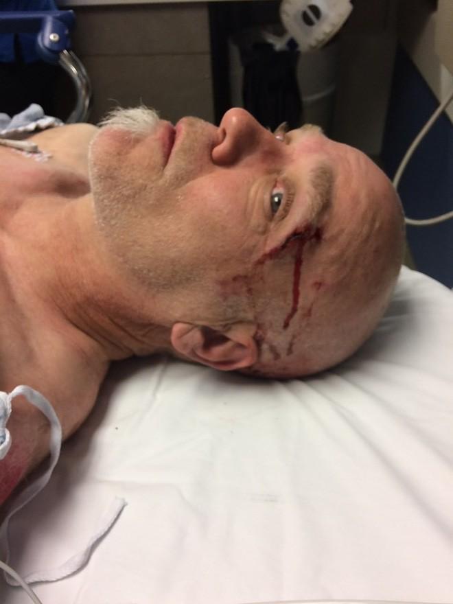 Nhờ đeo Apple Watch, cụ ông tại Mỹ may mắn được cứu sống khi bị chấn thương sọ não do ngã xe - Ảnh 1.