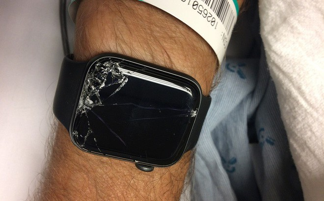 Nhờ đeo Apple Watch, cụ ông tại Mỹ may mắn được cứu sống khi bị chấn thương sọ não do ngã xe - Ảnh 2.