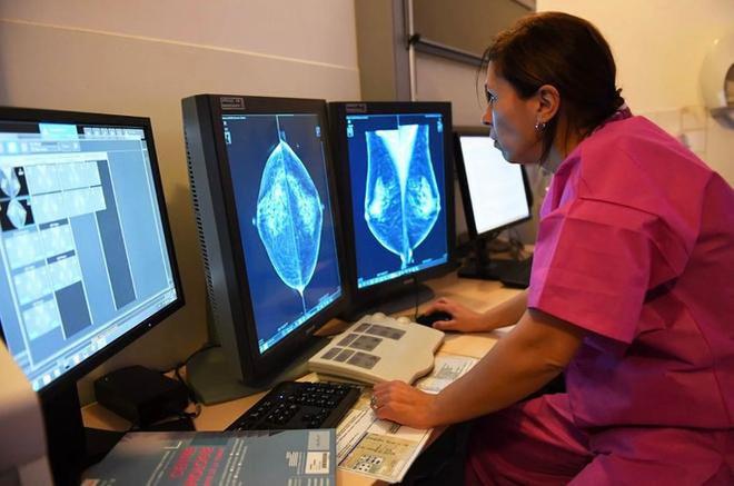 Vì sao trí tuệ nhân tạo của Google có thể chẩn đoán ung thư vú chính xác hơn nhiều so với các bác sĩ giỏi nhất? - Ảnh 1.
